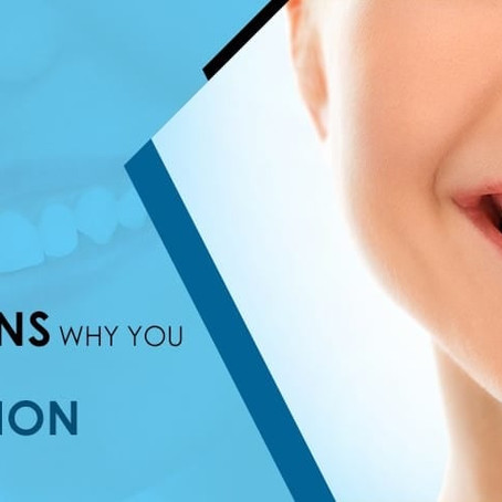 5 Reasons Why You Need Tooth Extraction