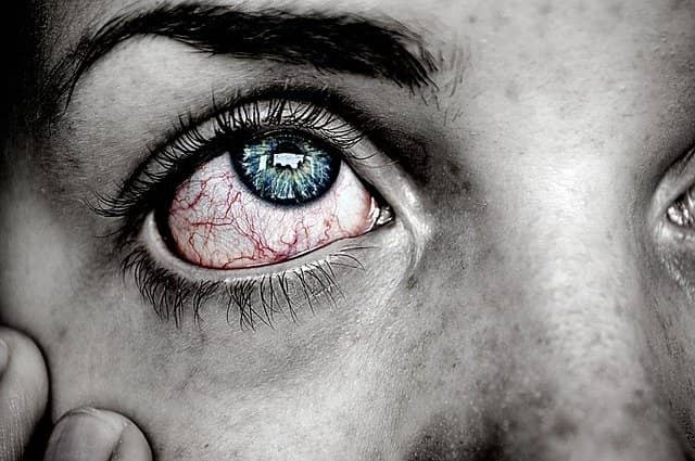 Red veins in eye causes and treatment