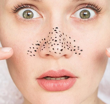 Everything You Need to Know About Blackhead Removal and Wrinkle Reduction