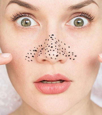 How to remove blackheads easily