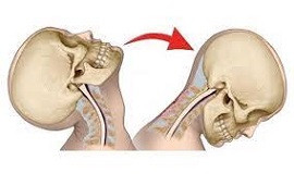 Steps To Follow For a Whiplash Claim