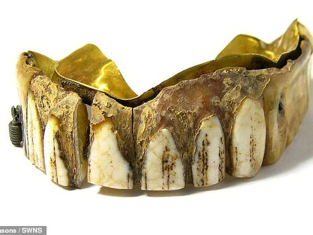The history of dentists using gold