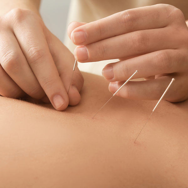 Hair thin acupuncture needles insert painlessly