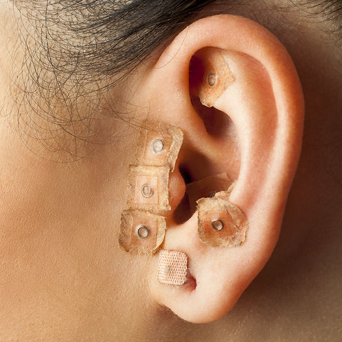 Ear seeds can be used to treat addiction and other ailments