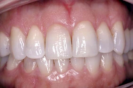After: Normal Length & Smooth Gums
