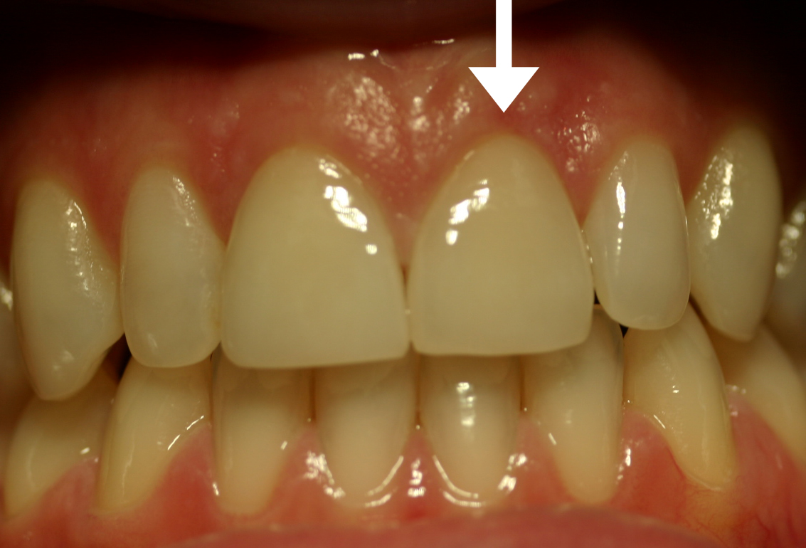 After: Normal Length & Healthy Gums