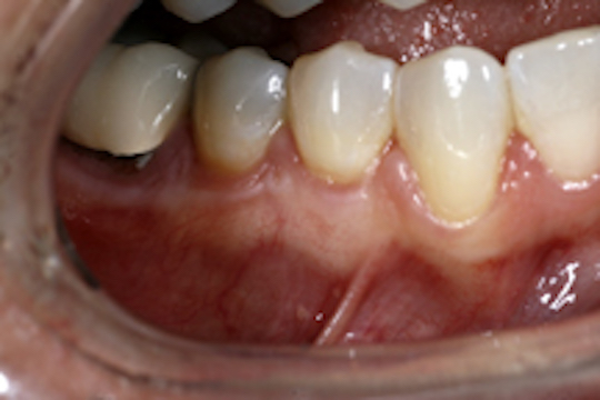 Smile After Implants