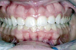 Before: Short Teeth & Thickened Gums