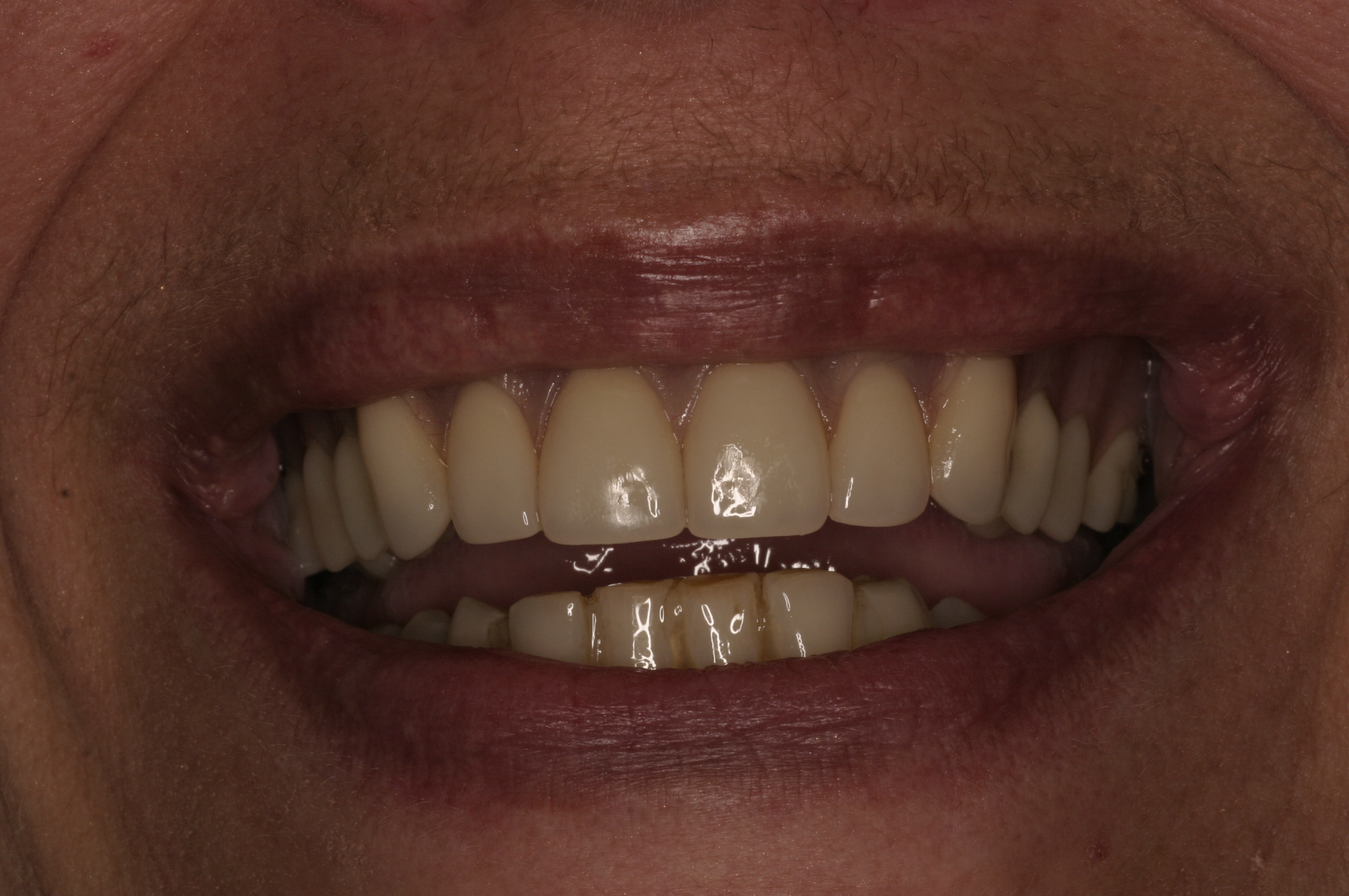 After Smile with Implants