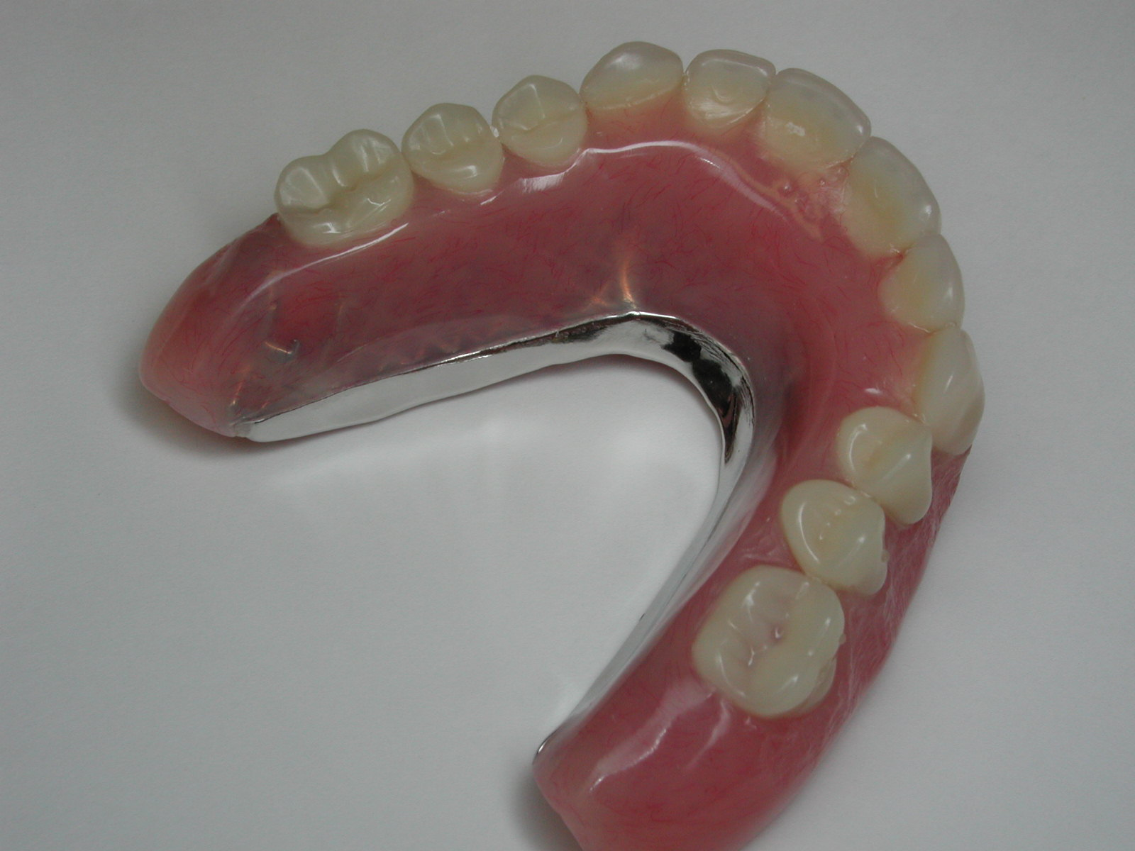 Removable Prosthesis