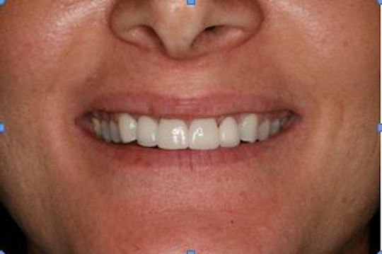 After: Healthy Gums Under Bridge