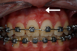 No Frenum Pull Front Teeth (F)