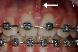Frenum Pull Between Front Teeth (F)