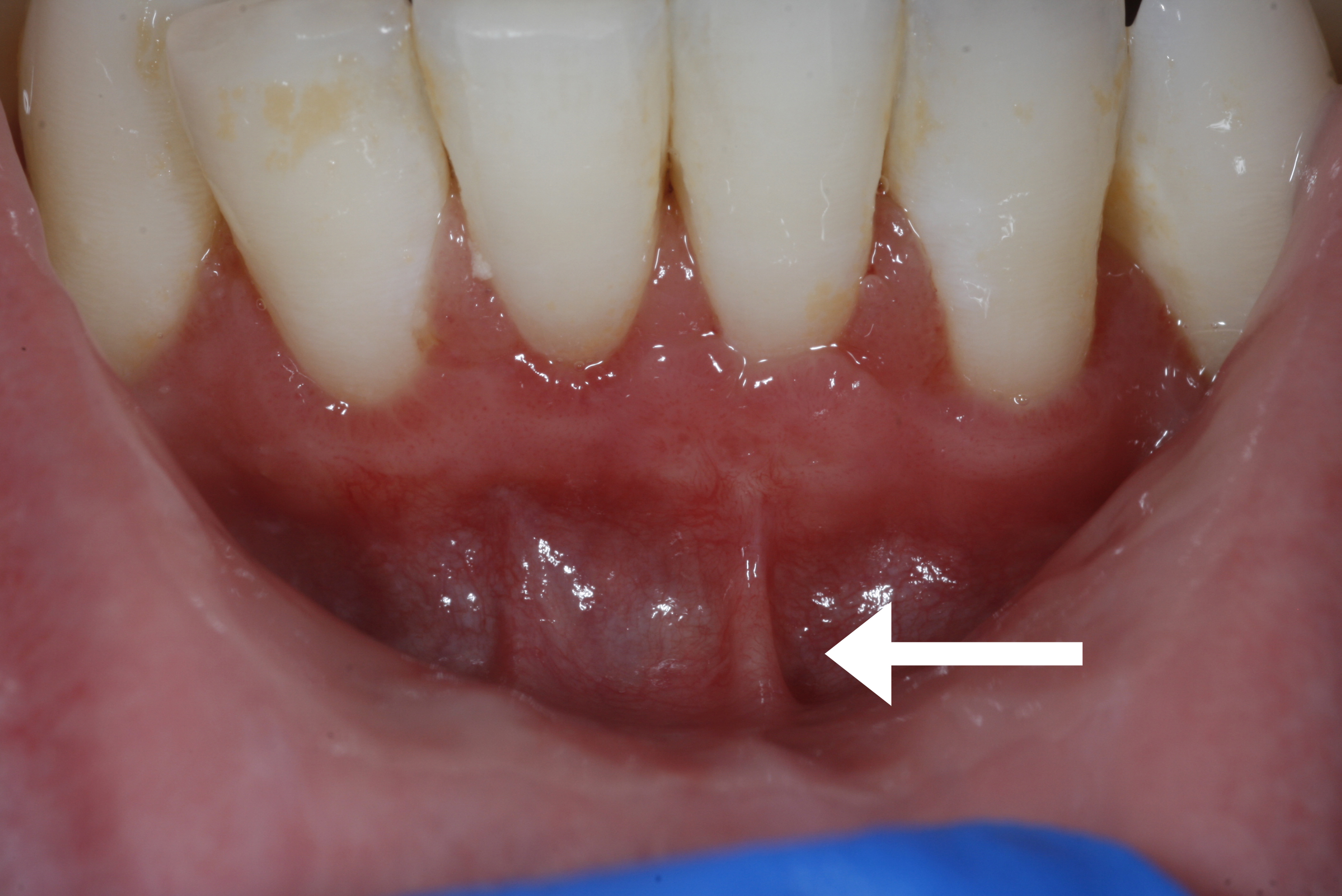 After: No Frenum Pull Between Teeth
