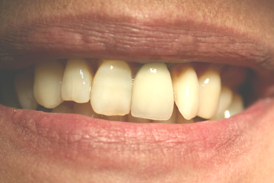Teeth Lost Due to Bone Loss
