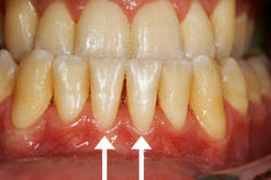 After: Gums are Healthy