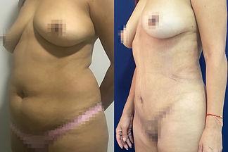 Abdominoplastia Dr. Davila