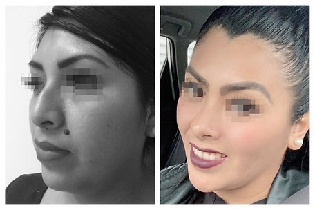 rinoplastia y afinamiento de rostro Dr. Miguel Davila cirujano plastico