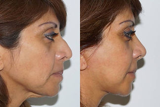 facelift Dr. Davila