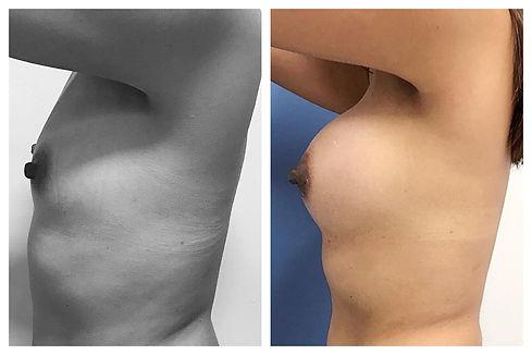 aumento de mamas Dr. Miguel Davila cirujano plastico