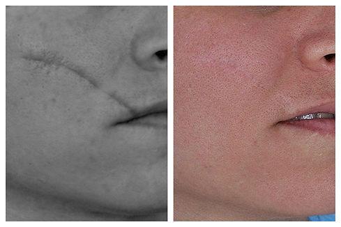 cicatrices laser Dr. Miguel Davila