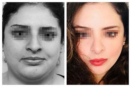 afinamiento de rostro Dr. Miguel Davila cirujano plastico
