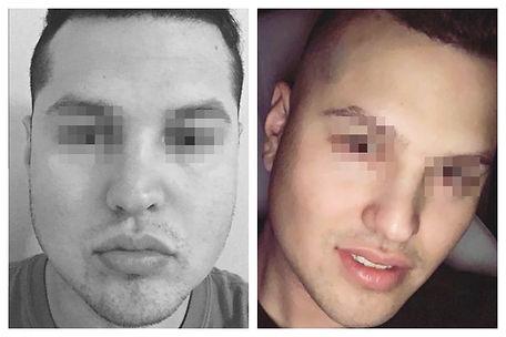 afinamiento de rostro hombre Dr. Miguel Davila cirujano plastico