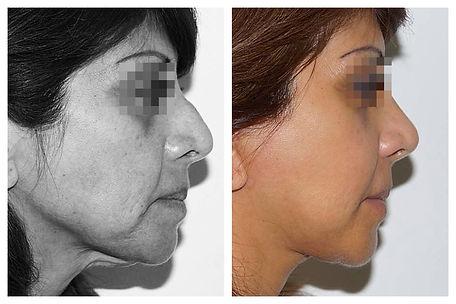 rejuvenecimiento facial Dr. Miguel Davila cirujano plastico