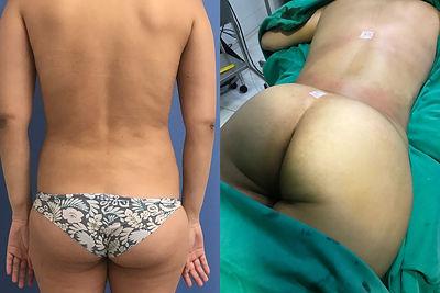 Cirugia de contorno corporal Dr. Davila