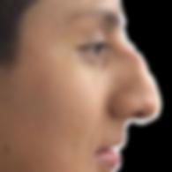 dorso prominente nariz