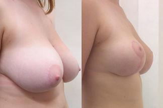 levantamiento de mamas