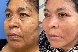 rejuvenecimiento de rostro Dr. Davila