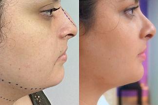 Afinamiento de rostro Dr. Davila