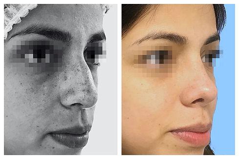 rinoplastia Dr. Miguel Davila cirujano plastico