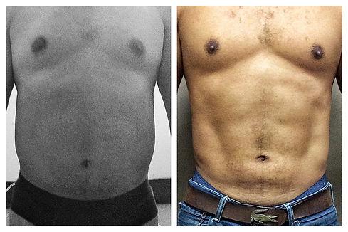 lipoescultura masculina Dr. Miguel Davila cirujano plastico