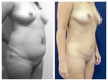 abdominoplastia Dr. Miguel Davila cirujano plastico