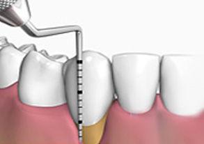 Clínicas dentales vigo, implantología vigo, endodoncia vigo, estética dental vigo, periodoncia vigo, ortodoncia vigo, invisalign vigo, phillips zoom vigo, implantes vigo, implantología express vigo, dentista vigo, odontólogo vigo, bayona