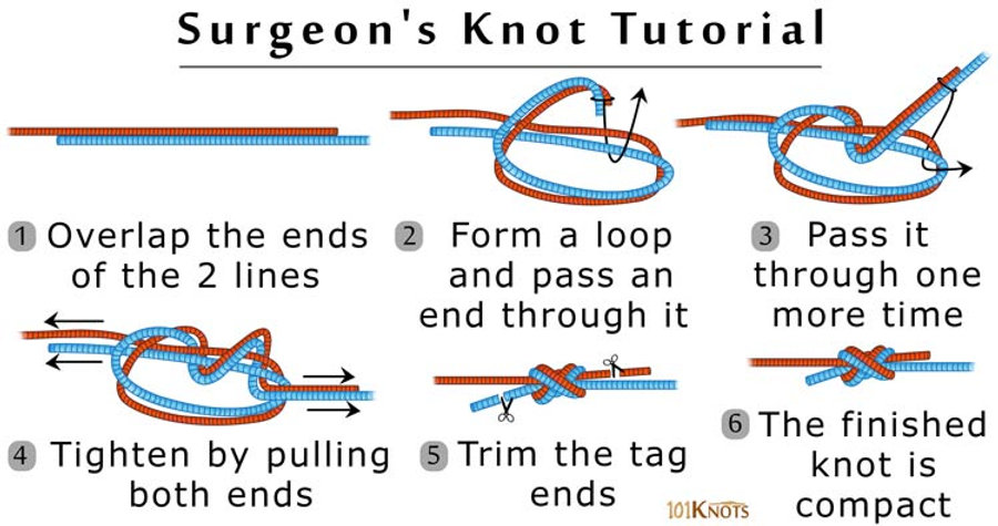 How-to-Tie-a-Surgeon's-Knot.jpg
