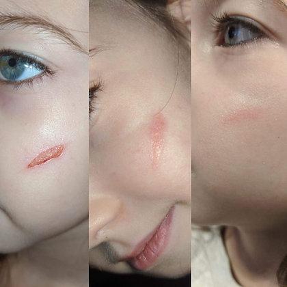 War Woman Skin Salve