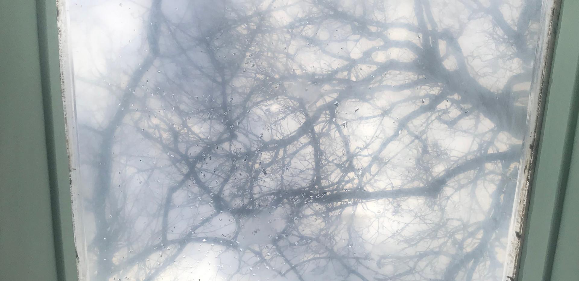 skylight view in semi supine.jpg