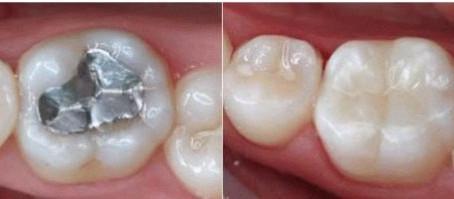 Saiba mais sobre a substituição de restaurações dentárias