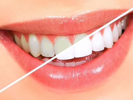 Saiba mais sobre clareamento dentário