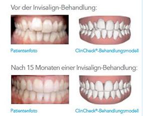 Invisalign Zahnarzt Zürich Dr. Andreas Galli