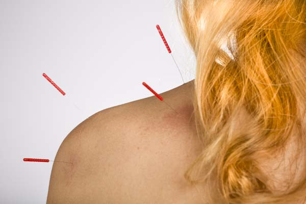 Acupuncture for pain in the shoulder