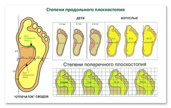 Лечение плоскостопия Бишкек остеопатия