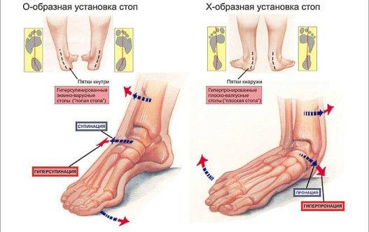 Плоскостопие и остеопат