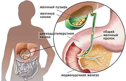 Холецистит остеопатия Бишкек
