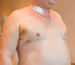 Пациент после торакоскопической абляции