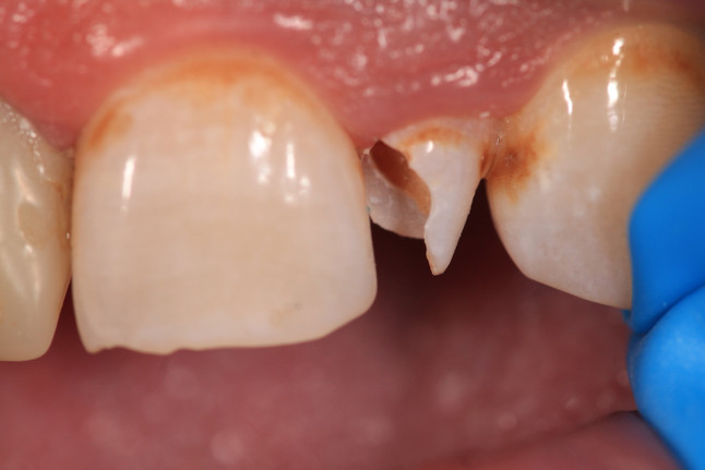 Tooth structure remaining after caries excavation