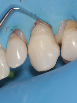 A Class V prep to remove caries along with round bur grooves for retention